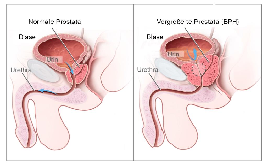 Vergrösserte Prostata